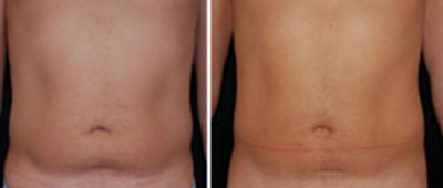 Before and after laser liposuction of male abdomen and waist