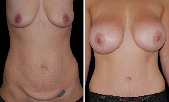 Mommy makeover before and after full tummy tuck and breast augmentation
