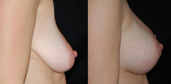 Before and after mommy makeover breast lift and breast augmentation