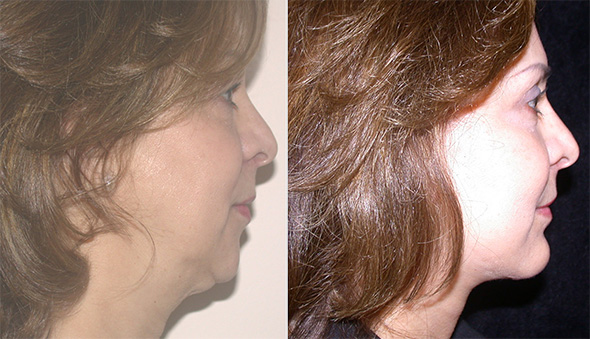 Before and after neck lift and chin implant to correct loose neck skin, jowls and sagging  chin or witches chin