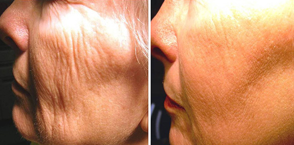 Before and after 1540 non-ablative fractional erbium laser resurfacing for wrinkle removal and skin plumping