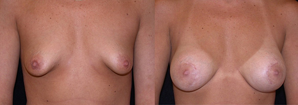 Before and after breast augmentation to correct triangular shaped breast