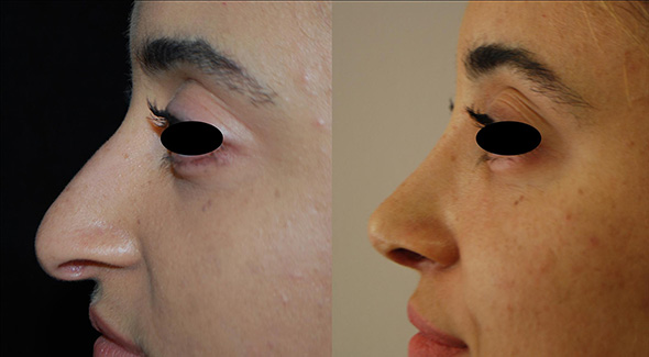 Nose before and after open Rhinoplasty to lift nasal tip and remove hump