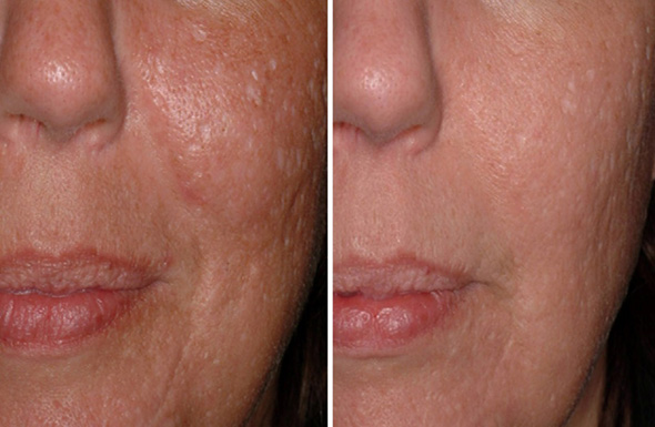 Before and after removal of acne scars with laser scar removal treatment with 1540 non-ablative fractional laser