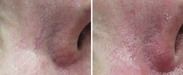 Before and after photo facial removal of spider veins on  face