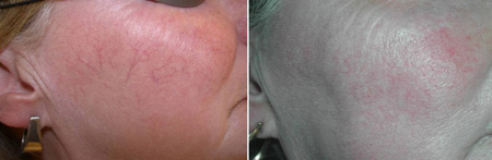 Before and after removal of spider veins and telangiectasia of face with IPL or intense pulsed  light treatment