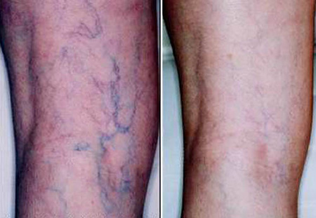Leg before and after removal of spider veins with combination sclerotherapy and 1064 Nd: YAG laser