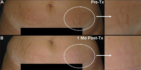 A Tummy Tuck Or Abdominoplasty Before And After Stretch Mark Removal With 1540 Non Ablative Fractional Erbium Laser