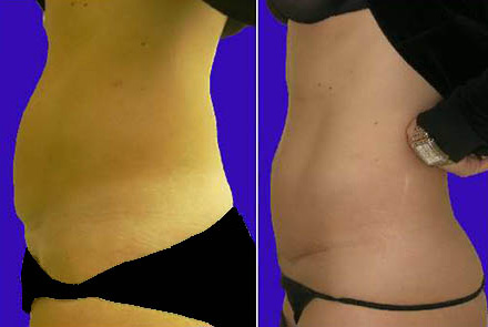Before and after mini bikini tummy tuck and C-section scar removal after pregnancy