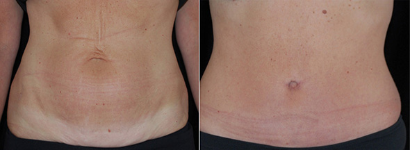 Tummy before and after full tummy tuck or abdominoplasty after weight loss