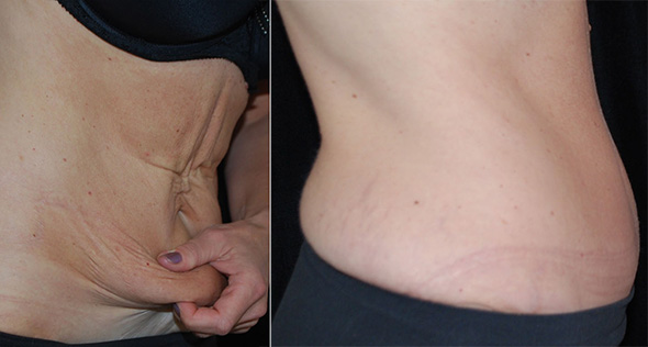 Before and after full tummy tuck or abdominoplasty after weight loss