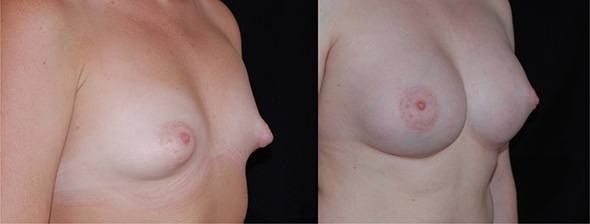 Breasts before and after tubular breast correction with breast implants