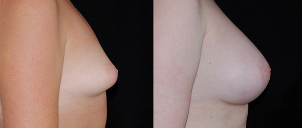 Before and after correction of tubular breasts with breast implants