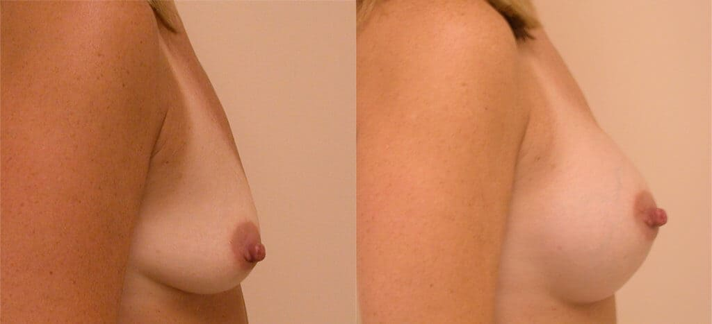 Choose Breast Implant Size in CC Boston