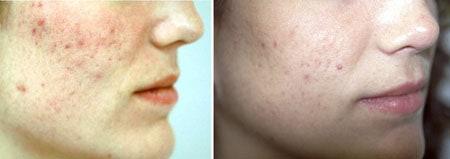 Acne Control Treatment Boston