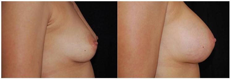 Sub glandular breast augmentation Boston