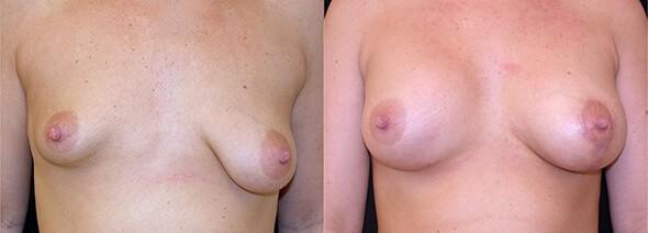 Breast Asymmetry Boston