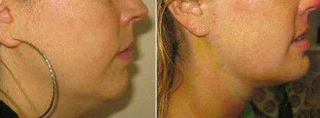 Chin Augmentation Boston | Chin Implants | Dr  Brooke Seckel