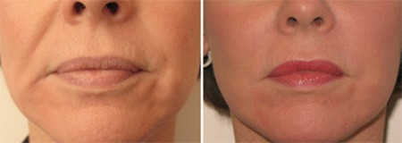 Facial Fillers Boston