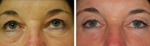 Blepharoplasty Boston