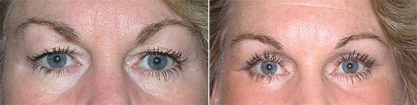Eyelid Surgery Boston