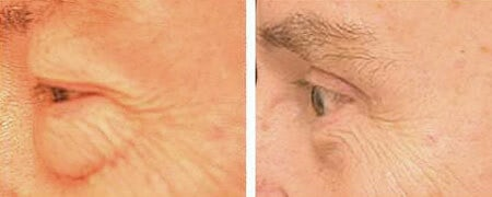 Male Eyelid Surgery Boston