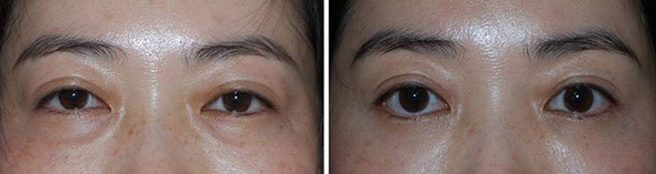 Asian Blepharoplasty Boston