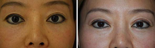 Boston Asian Blepharoplasty