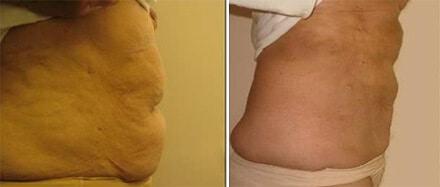 Liposuction Surgery Boston