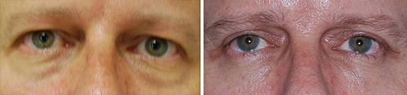 Male Blepharoplasty Boston
