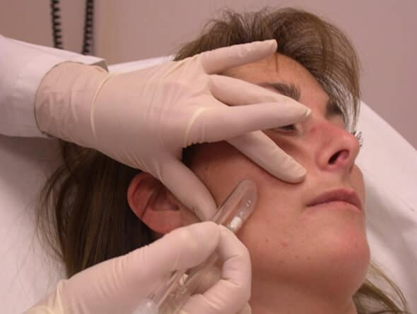Microdermabrasion Boston