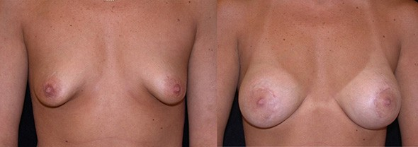 Unusually Shaped Breasts Boston