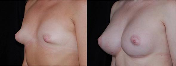 Breast Deformity Correction Boston