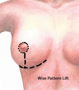 Wise Pattern Mastopexy leaves long scar under breast